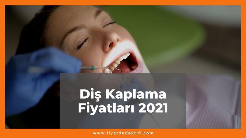 Diş Kaplama Fiyatları 2021, Güncel Fiyatlar 2021 | Fiyat Dedektifi - Güncel Canlı Zamlı Fiyatlar 2021